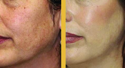 PCA skin peel - before and after treatment